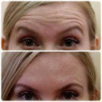 How Many Injections Of Botox For Frown Lines? » Facial