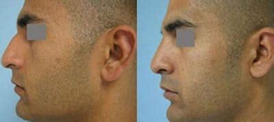 Nose Reshaping - Covent Garden Aesthetic Clinics London