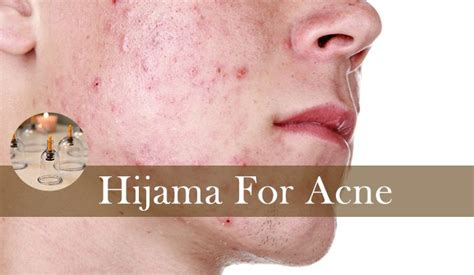 Hijama for Acne Treatment in Lahore   Physiotherapy Hospital